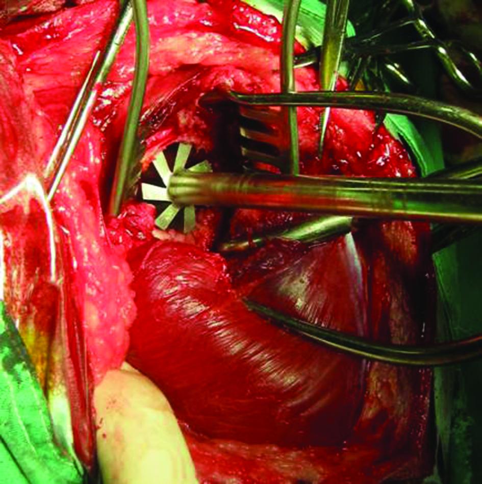 Vi Modular Hip System Instrumentation