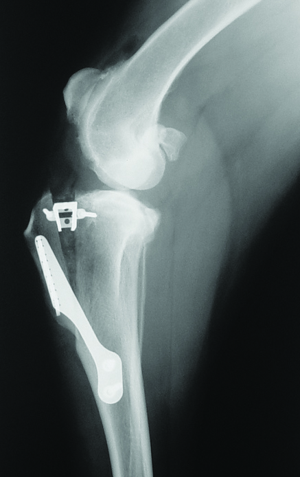 TTA - Tibial Tuberosity Advancement