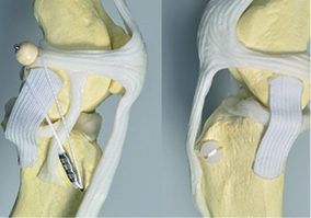 The Lateral Button Suture for Cranial Cruciate Ligament Rupture Image