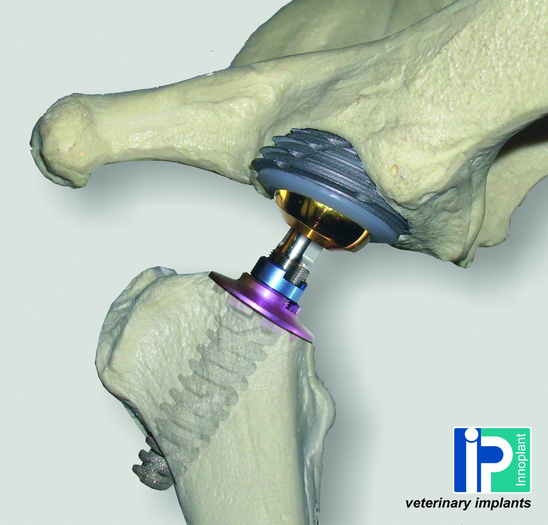 Helica - Cementless Hip System