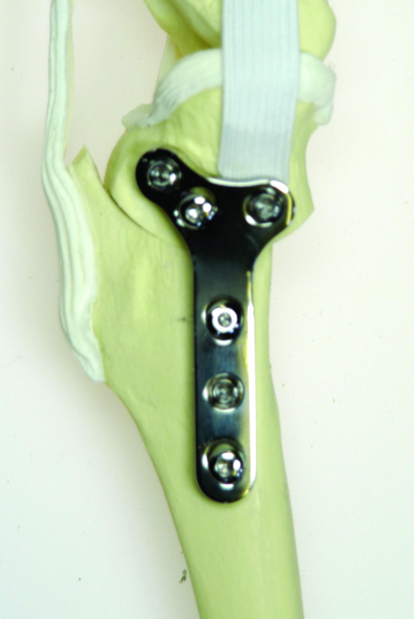 TPLO Plates with Locking Screws
