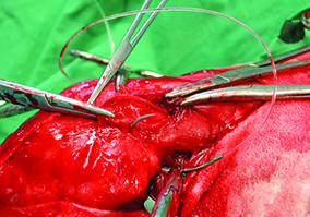 Management of the ruptured Cranial Cruciate Ligament (CrCL) - Lateral Suture System Image